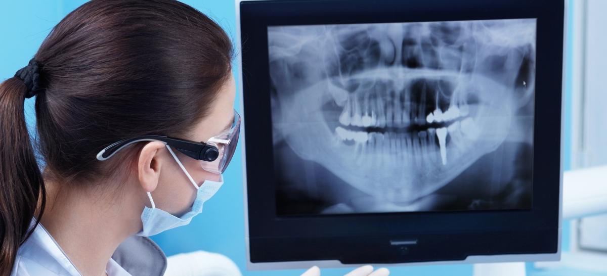 Porque debo tener un Rayos-X panorámico digital en mi clinica dental ...